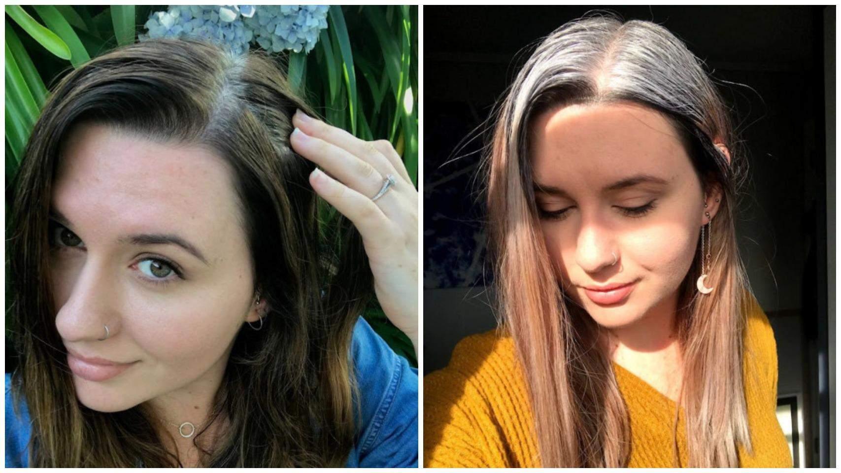 Перше сиве волосся дівчина побачила у 13 років