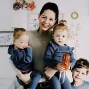 У британської пари народилися унікальні дівчатка-близнята: фото