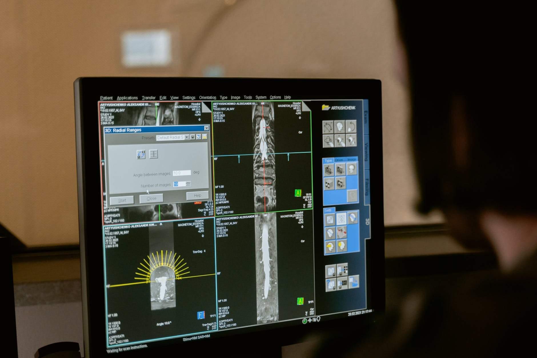 Що таке комп'ютерна томографія