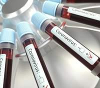В Україні виявили 24 823 випадки зараження коронавірусом