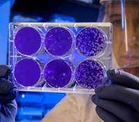 4 могутні країни Європи об'єднались, щоб створити вакцину проти коронавірусу