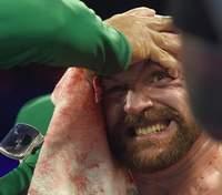 Ф'юрі назвав Усика одним з найкращих боксерів світу
