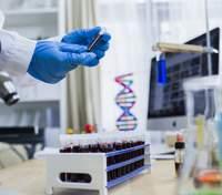 ВООЗ заявила про створення нового тесту на COVID-19