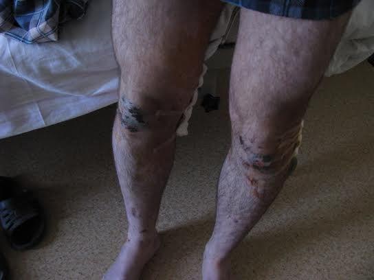 Крымским пленным отрезали уши, простреливалы ноги и били током [Фото]