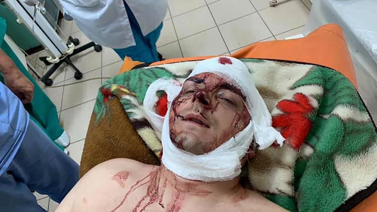 Суд поновив нещодавно жорстоко побитого Семеніхіна на посаді міського голови Конотопа