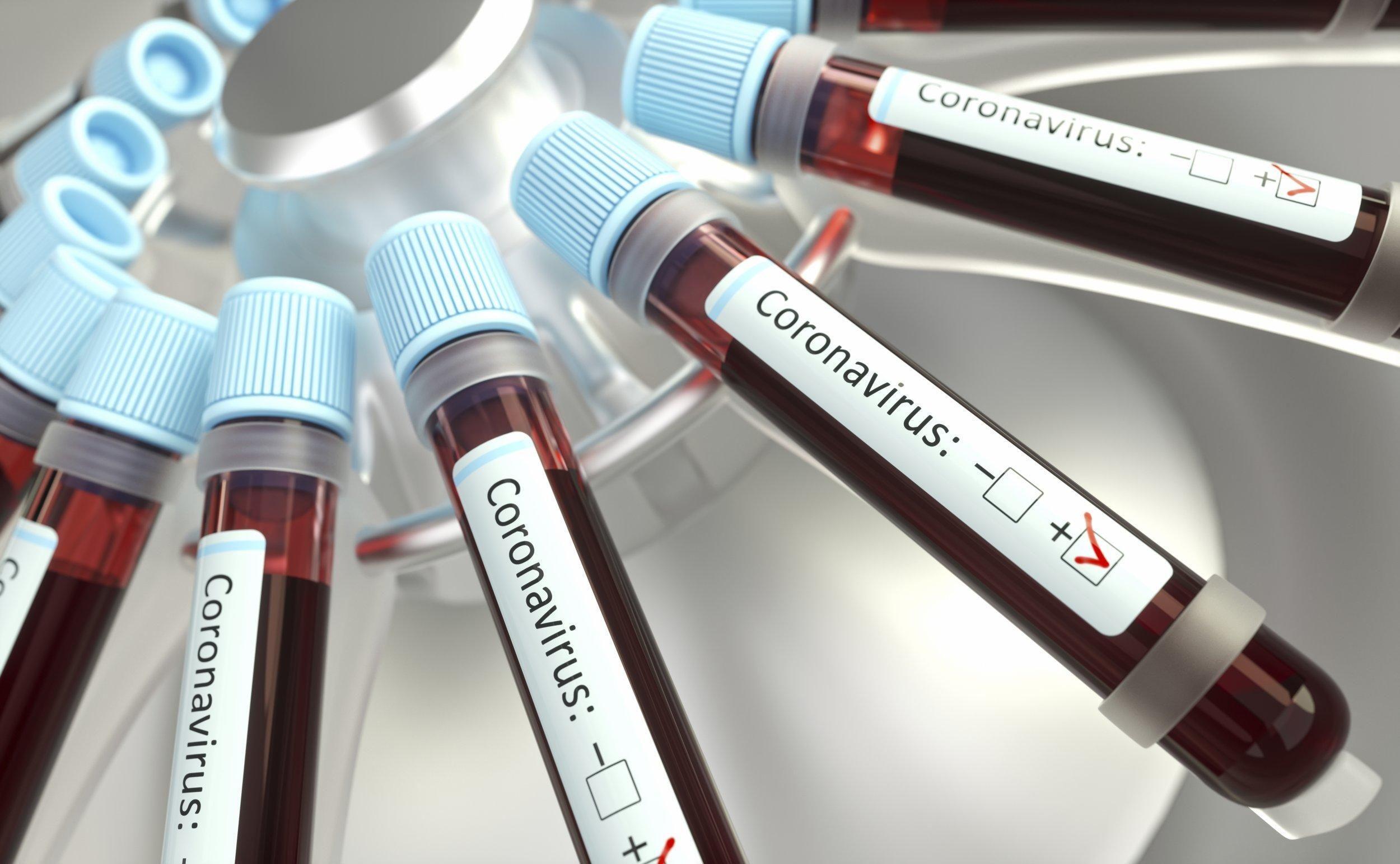 Коронавирус в Украине: поможет ли массовое тестирование остановить распространение - Новости здоровья - Здоровье 24
