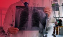 Туберкулез в Украине: что изменится в системе лечения и есть ли причины для паники
