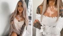 Девушку называли заразной из-за витилиго: как ей помогли татуировки