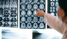 Выяснили новую роль жировых клеток в снижении когнитивных функций