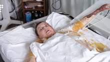 Як виглядає Катерина Гандзюк, яку облили кислотою: активістка записала відеозвернення