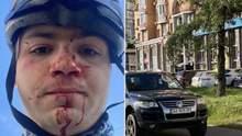 У Києві водій позашляховика побив до крові велосипедиста: фото 18+