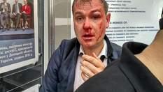 """Члены С14 избили заместителя главы партии """"Умная сила"""": фото и видео 18+"""
