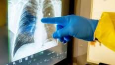 Чи треба робити КТ легень при підозрі та захворюванні на коронавірус, – пояснення Супрун