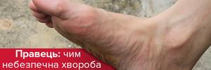 Правець: симптоми та причини важкої хвороби
