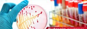 Чим так небезпечна дифтерія: симптоми, профілактика та лікування