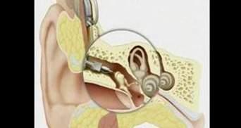Перший слуховий апарат призначений для імплантації в голову