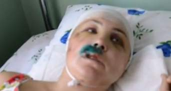 В Николаевской области двое милиционеров изнасиловали девушку и проломили ей череп