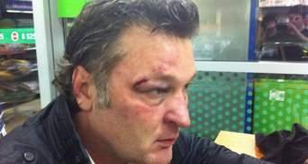 В Крыму похитили и избили телеведущего Геннадия Балашова (Фото)