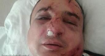 Луганского сепаратиста до полусмерти избили в Киеве
