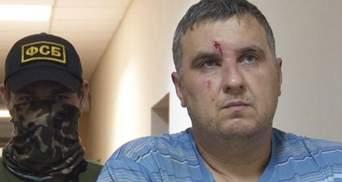 Кримські окупанти жахливо катували українця, якого звинуватили у диверсії
