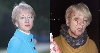 Побита суддя Гольник назвала імена замовників нападу на неї