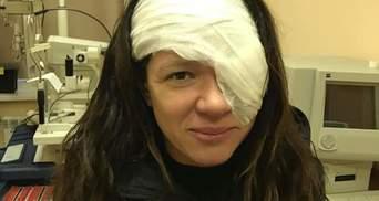 Руслана показала наслідки операції на оці