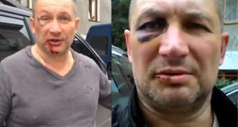 У Криму сильно побили українця через синьо-жовті кольори на авто: відео