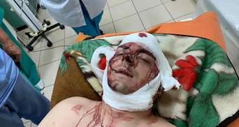 Екс-мера Конотопа Семеніхіна жорстоко побили на Сумщині