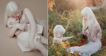 Сестры-альбиносы очаровали мир своей красотой: захватывающие фотографии, которые поразят каждого