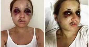 Думаєте, що хотіла б лежати тут: жертва нападу в поїзді Лугова відповіла недоброзичливцям