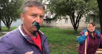 """Хотели выстрелить: депудата от """"Оппоблока"""" в Житомире облили зеленкой-видео"""