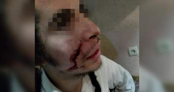 В Умани неизвестный ножом порезал лицо подростку из Израиля: видео