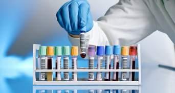 Українська вакцина проти COVID-19: вчені повідомили про успіх під час доклінічних досліджень
