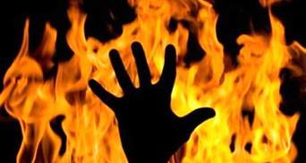 Ровесники підпалили школяра в Бердянську: деталі інциденту