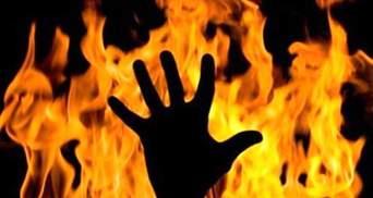 Ровесники подожгли школьника в Бердянске: детали инцидента