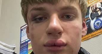 В Киеве гомофобы час издевались над подростком из-за накрашенных губ