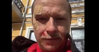 Розпилили газ в очі та вдарили: Майкл Щур розповів про сутичку з хлопцями на самокатах