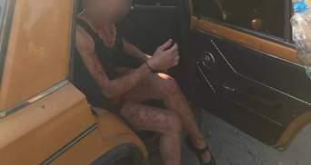Була вся в крові: житель Дніпра побив жінку та запхав до авто
