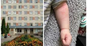 Шукали вену: на Житомирщині медики обкололи місячного малюка – фото