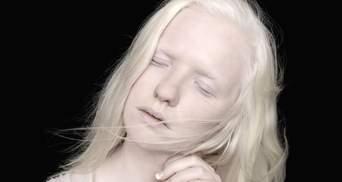 Коли білий – не колір, а його відсутність: що треба знати про альбінізм