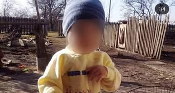Отказал мозг: что известно о состоянии 2-летнего мальчика, которого порезал отчим