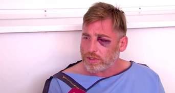 МВС Грузії прокоментувало смерть журналіста після побиття на мітингу