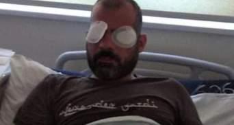 У Грузії на одне око осліп оператор, якого побили противники ЛГБТ