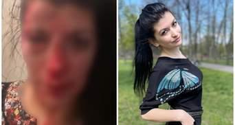 В Днепре жестоко избили известную активистку Эшонкулову: полиция говорит о покушении на убийство