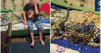 """""""Мать с отчимом привязали меня"""": мальчик, которого приковали в Кривом Роге, рассказал о побоях"""