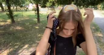 Шкіру роз'їло аж до кістки: для 18-річної дівчини похід до перукарки обернувся жахливим опіком