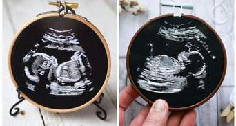 Мастер в совершенстве воспроизводит в вышивке ультразвуковые снимки малышей
