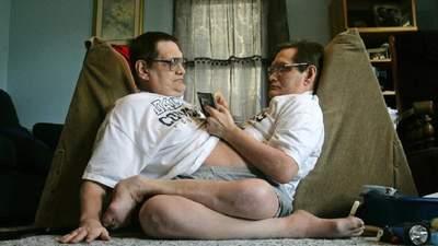 У США померли найстаріші сіамські близнюки в світі: цікаві факти з їх життя та фото