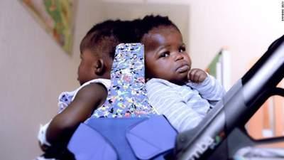 Впервые в мире: медики успешно разделили сиамских близняшек, которые срослись головами