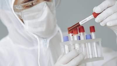 За сутки в Украине 819 новых больных COVID-19, еще 1 016 больных выздоровели